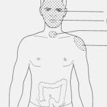 Места-мишени толстого кишечника.